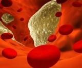 4 натуральных средства для профилактики атеросклероза