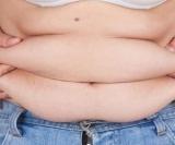 4 необычные причины ожирения